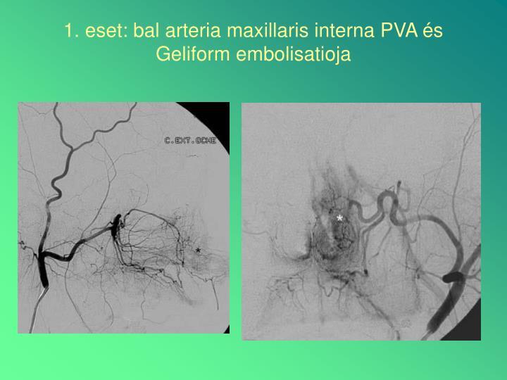 1. eset: bal arteria maxillaris interna PVA és Geliform embolisatioja