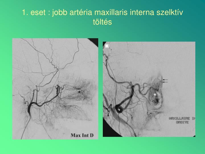 1. eset : jobb artéria maxillaris interna szelktív töltés