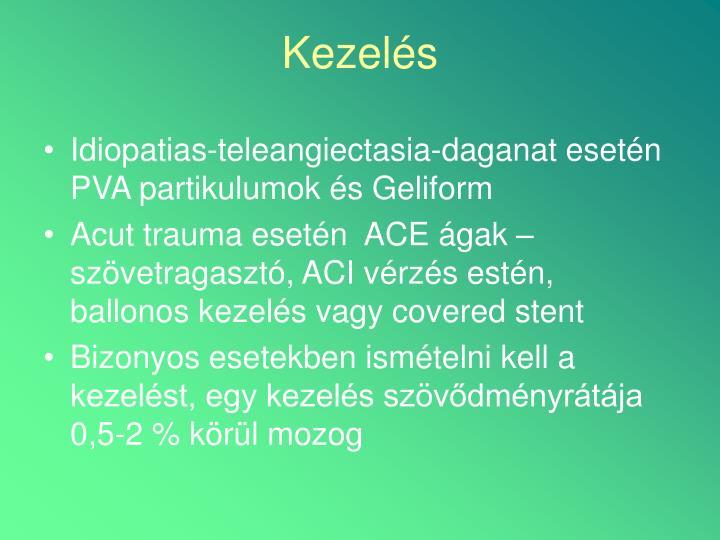 Idiopatias-teleangiectasia-daganat esetén PVA partikulumok és Geliform