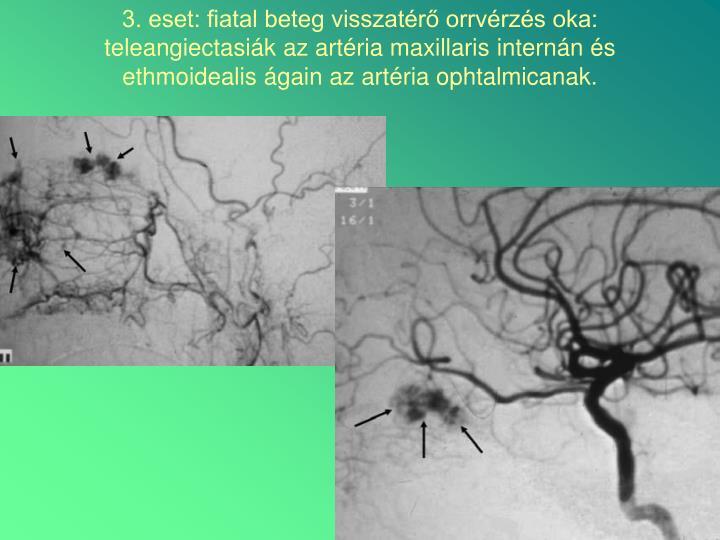 3. eset: fiatal beteg visszatérő orrvérzés oka: teleangiectasiák az artéria maxillaris internán és ethmoidealis ágain az artéria ophtalmicanak.