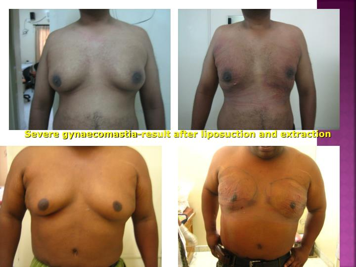 Severe gynaecomastia-result after liposuction and extraction