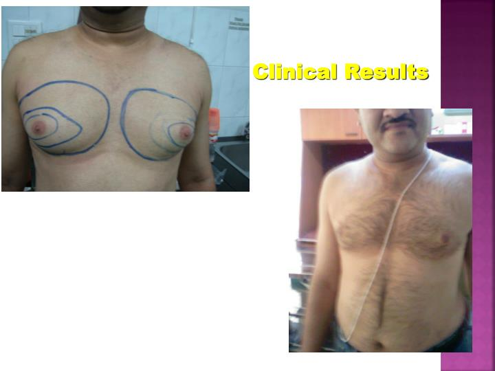 Clinical Results