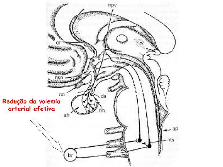 Redução da volemia arterial efetiva