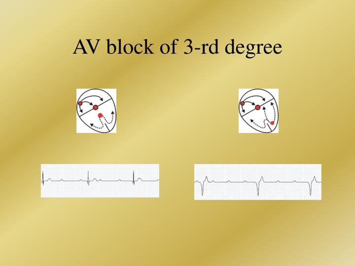 AV block of 3-rd degree