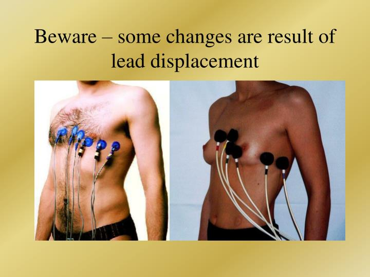 Beware – some changes are result of lead displacement
