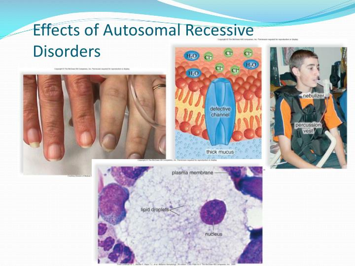 Effects of Autosomal Recessive Disorders