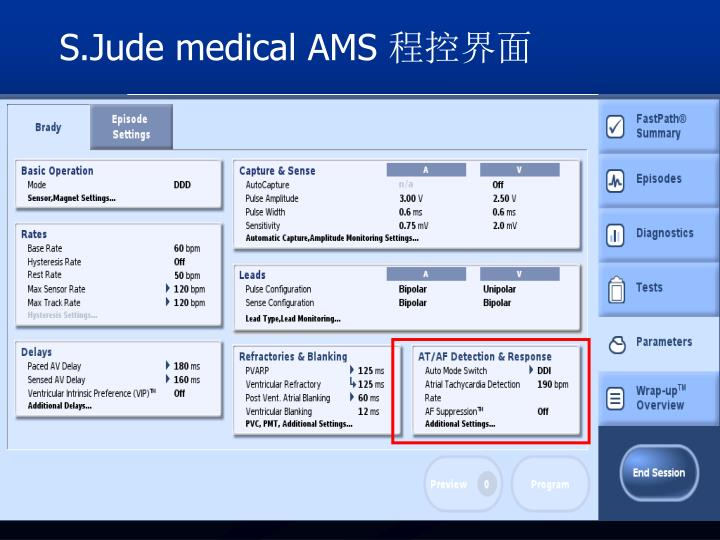 S.Jude medical AMS