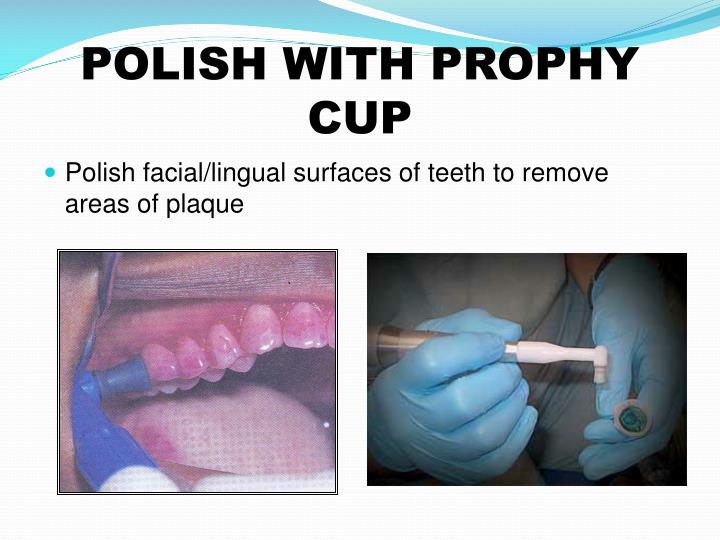 POLISH WITH PROPHY CUP