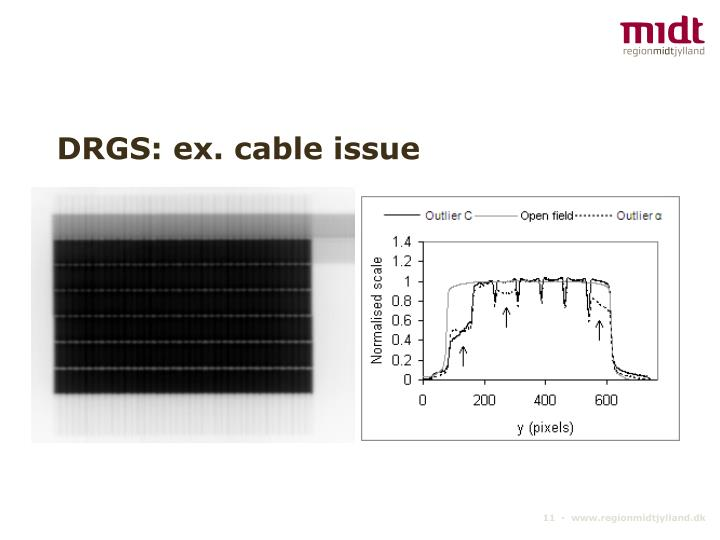 DRGS: ex. cable issue