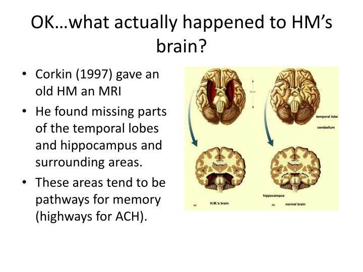 OK…what actually happened to HM's brain?
