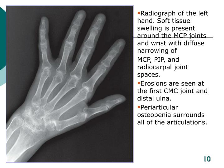 Radiograph of the left hand. Soft tissue swelling is present around the MCP joints and wrist with diffuse narrowing of