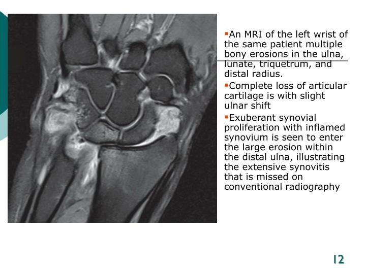 An MRI of the left wrist of the same patient multiple bony erosions in the ulna, lunate, triquetrum, and distal radius.