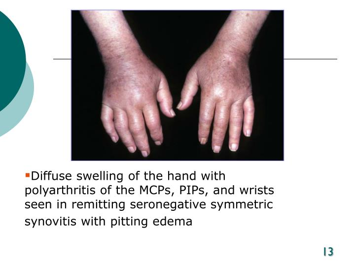 Diffuse swelling of the hand with polyarthritis of the MCPs, PIPs, and wrists seen in remitting seronegative symmetric