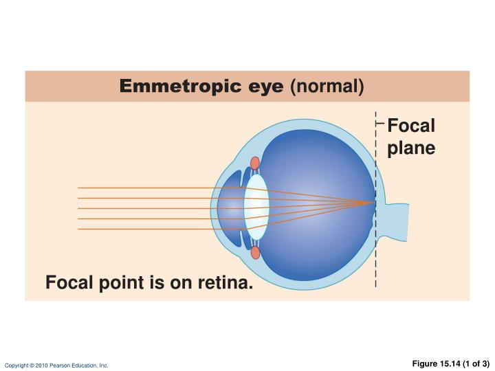 Emmetropic eye