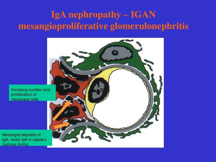 IgA nephropathy – IGAN