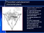 precordial lead placement horizontal plane