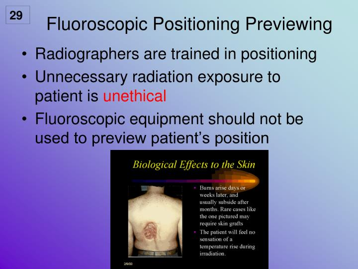 Fluoroscopic Positioning Previewing