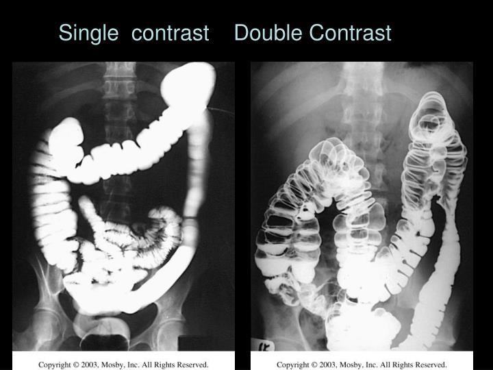 Single  contrast    Double Contrast