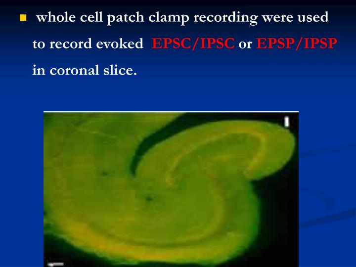 whole cell patch clamp recording were used to record evoked