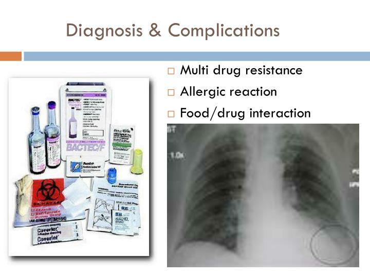 Diagnosis & Complications