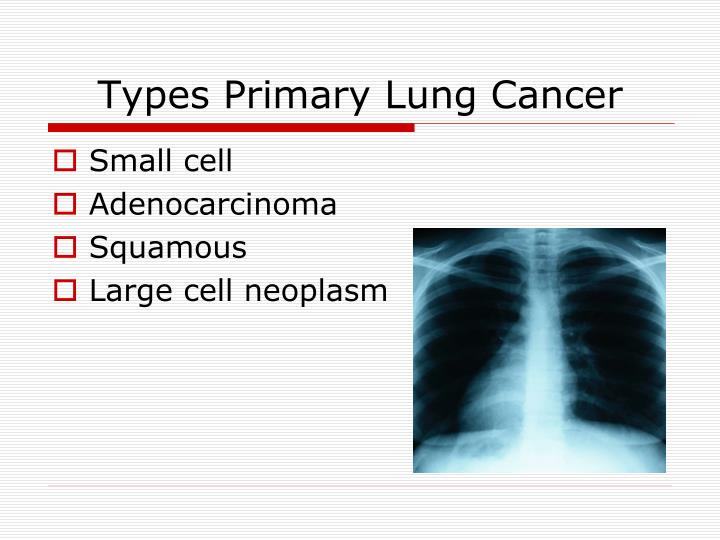 Types Primary Lung Cancer