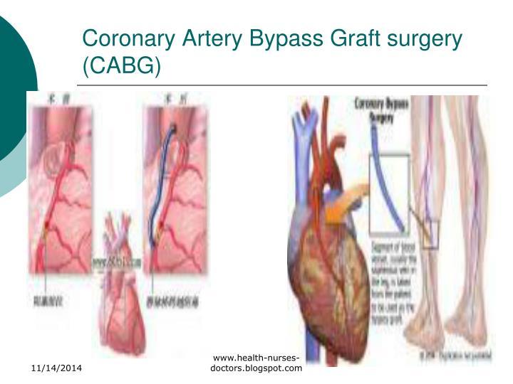 Coronary Artery Bypass Graft surgery (CABG)