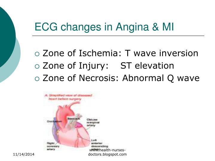 ECG changes in Angina & MI