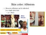 skin color albinism