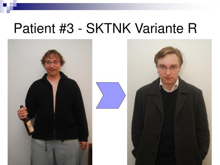 Patient #3 - SKTNK Variante R