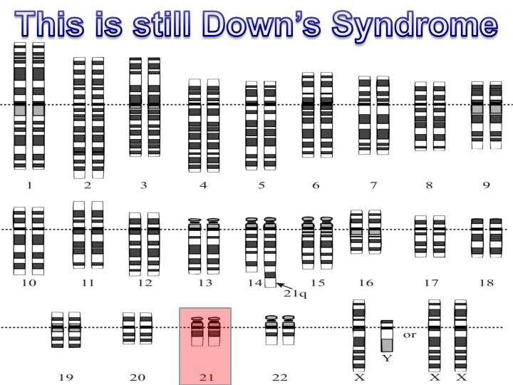 This is still Down's Syndrome