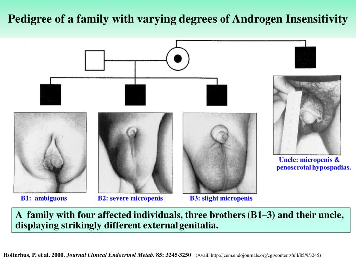 Pedigree of a family with varying degrees of Androgen Insensitivity