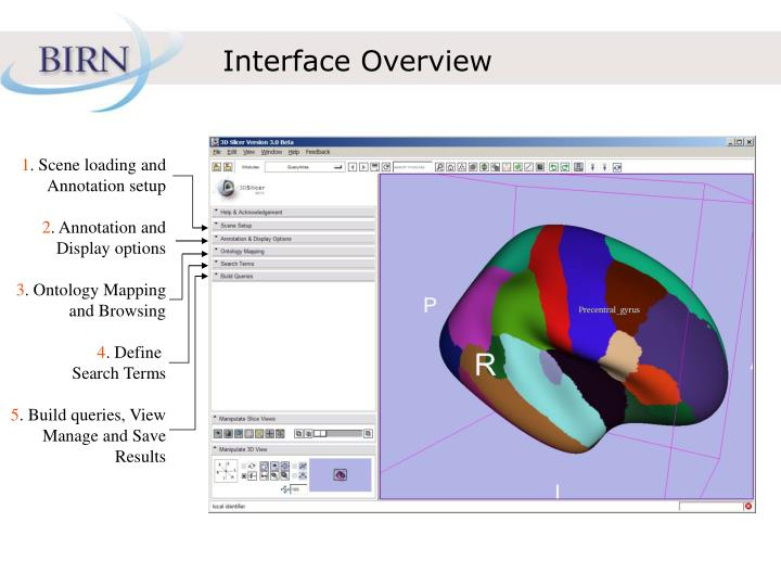Interface Overview