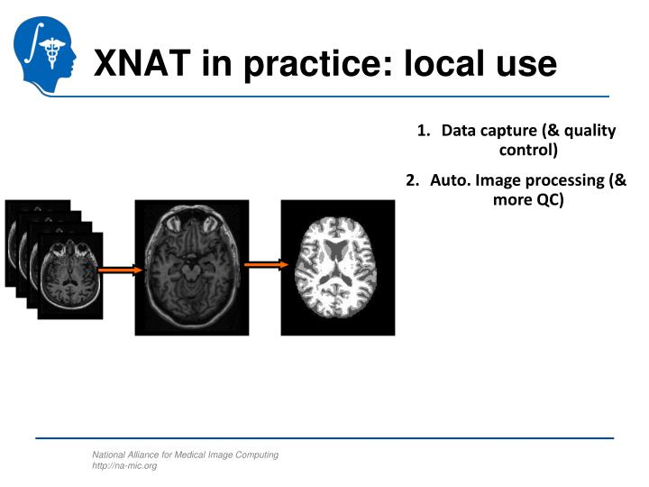 XNAT in practice: local use