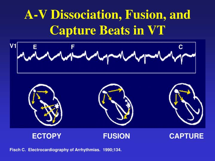 A-V Dissociation, Fusion, and