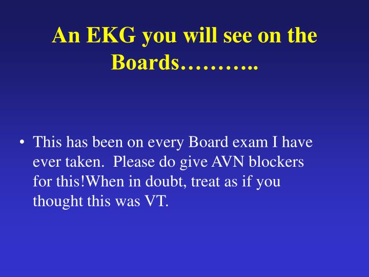 An EKG you will see on the Boards………..