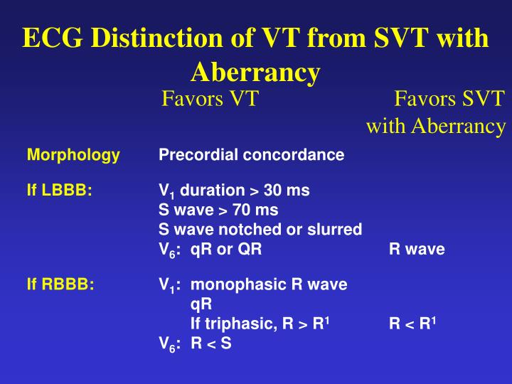 ECG Distinction of VT from SVT with Aberrancy