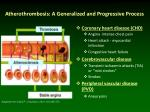 atherothrombosis a generalized and progressive process