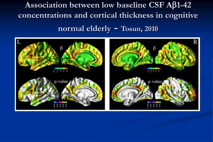 Association between low baseline CSF A