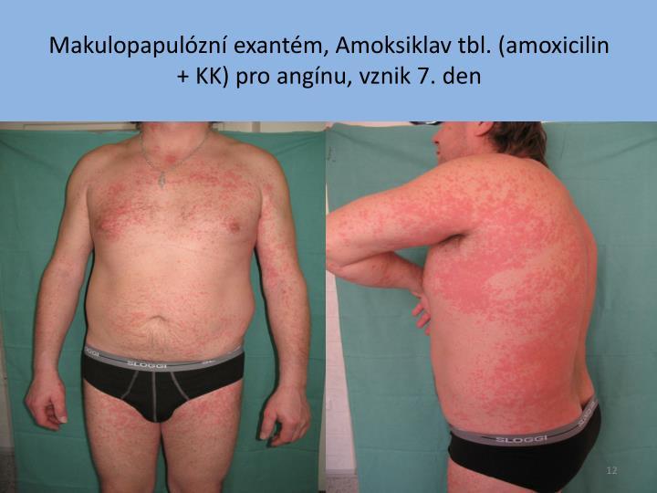Makulopapulózní exantém, Amoksiklav tbl. (amoxicilin + KK) pro angínu, vznik 7. den