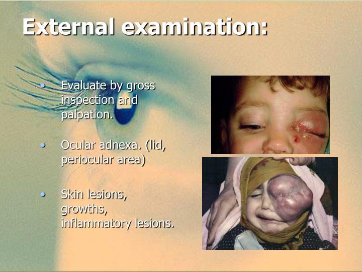 External examination: