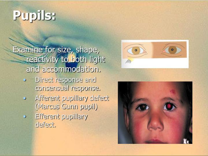 Pupils: