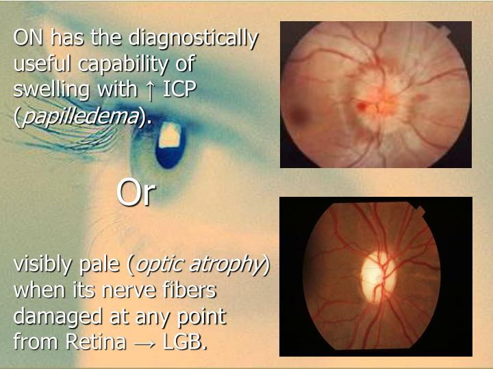 ON has the diagnostically useful capability of swelling with