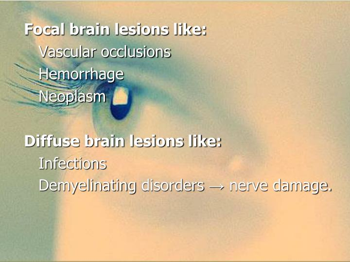 Focal brain lesions like: