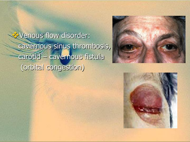 Venous flow disorder: