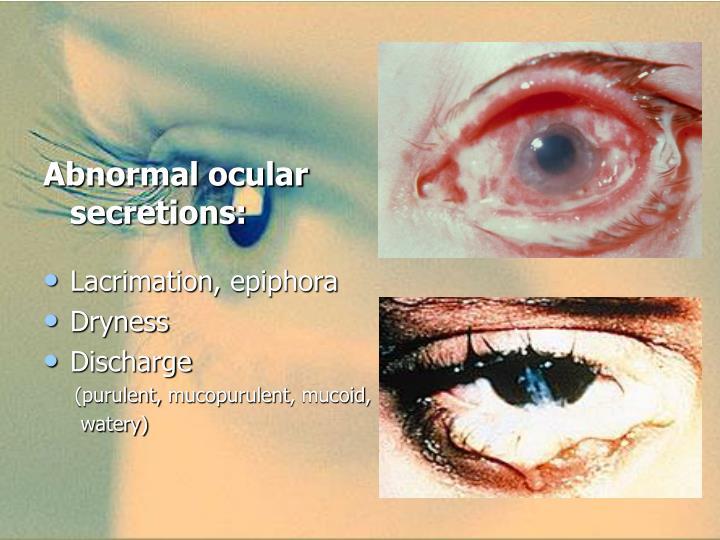 Abnormal ocular secretions: