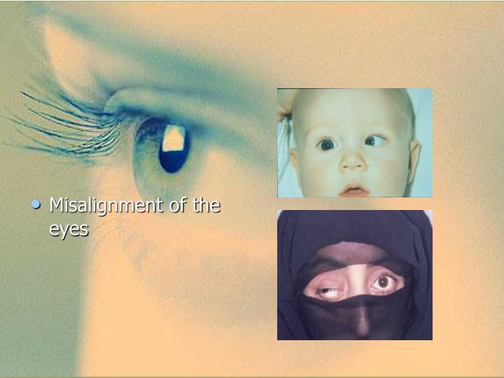 Misalignment of the eyes