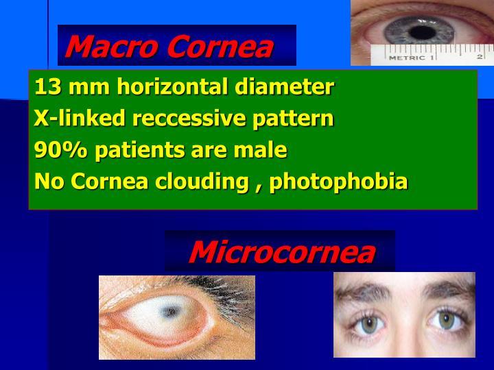 Macro Cornea