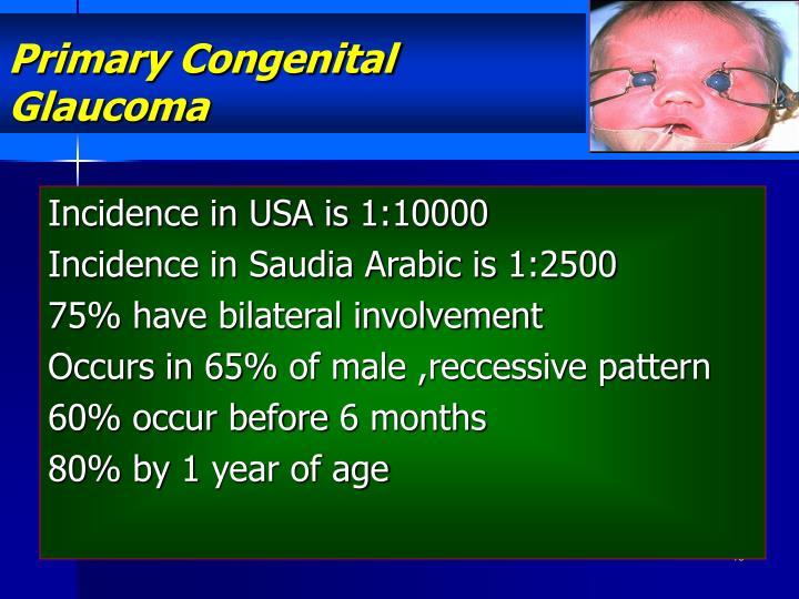 Primary Congenital Glaucoma