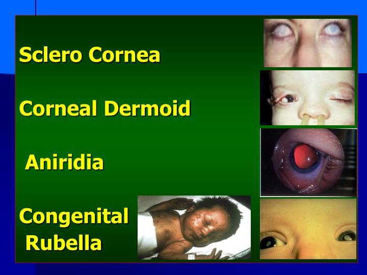 Sclero Cornea
