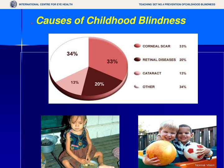 TEACHING SET NO.4 PREVENTION OFCHILDHOOD BLINDNESS